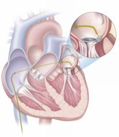 World's first non-surgical closure of leaking heart valve