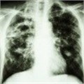 Reducing TB in HIV patients through two-pronged approach