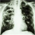 Approval by MCC of new TB drug welcomed