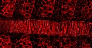 Research in the news: Straight spines depend upon sawtooth protein pattern