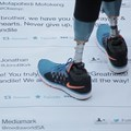 Tweets encourage double amputee teen to walk again