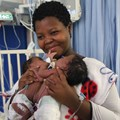 Uwenzile and Uyihlelile Shilongonyane with their mom, Bongekile Simelane, minutes before they underwent their separation surgery .