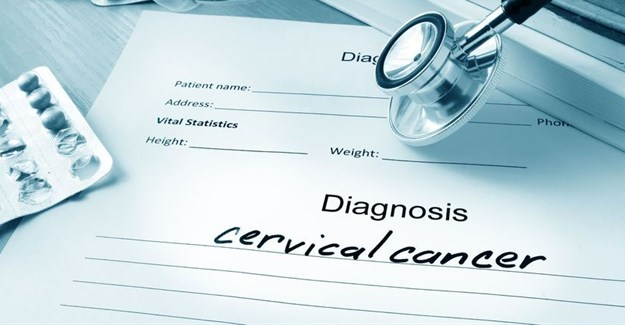 IUDs lower risk of getting cervical cancer